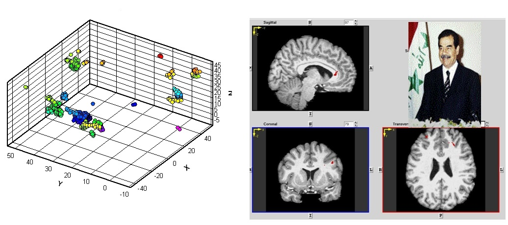 Activation patterns during interrogation concerning recognition of the face of Saddam Hussein. Image: Courtesy MMT Neurotech.